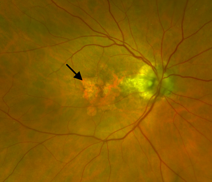 retina with fundus