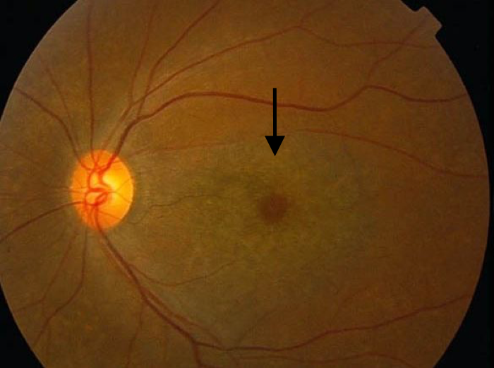 Fundus photos of toxicity