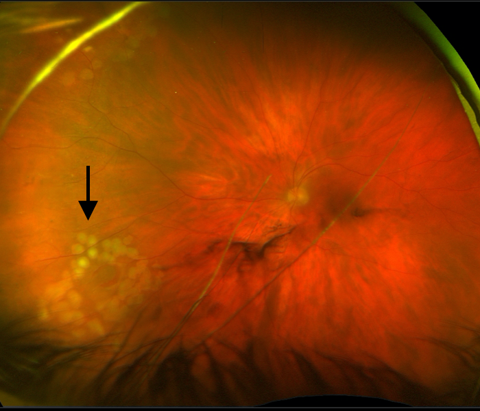Retinal tear after laser treatment