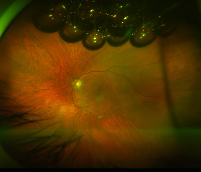 Retinal detachment repaired with gas