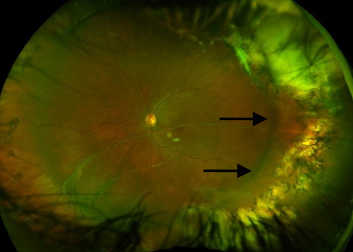 Retinal detachment repaired with scleral buckle